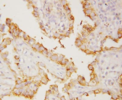 Immunohistochemistry (Formalin/PFA-fixed paraffin-embedded sections) - CD51 antibody (ab112487)
