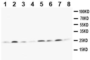 Western blot - MGMT antibody (ab112504)