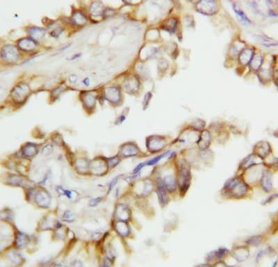 Immunohistochemistry (Formalin/PFA-fixed paraffin-embedded sections) - MGMT antibody (ab112504)