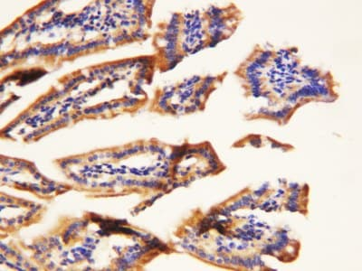 Immunohistochemistry (Formalin/PFA-fixed paraffin-embedded sections) - TNFRSF1A antibody (ab112535)