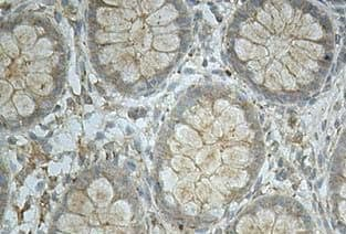 Immunohistochemistry (Formalin/PFA-fixed paraffin-embedded sections) - ICAM4 antibody (ab112554)