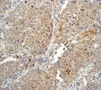 Immunohistochemistry (Formalin/PFA-fixed paraffin-embedded sections) - PHD1/prolyl hydroxylase antibody [EPR2746] (ab113077)