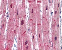 Immunohistochemistry (Formalin/PFA-fixed paraffin-embedded sections) - Sarcomeric Alpha Actinin antibody (ab113086)