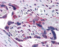 Immunohistochemistry (Formalin/PFA-fixed paraffin-embedded sections) - TXNDC antibody (ab113088)