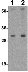 Western blot - Anti-AP3S1 antibody (ab113099)