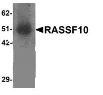 Western blot - Anti-RASSF10 antibody (ab113105)