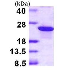 SDS-PAGE - ARL5B protein (ab113159)