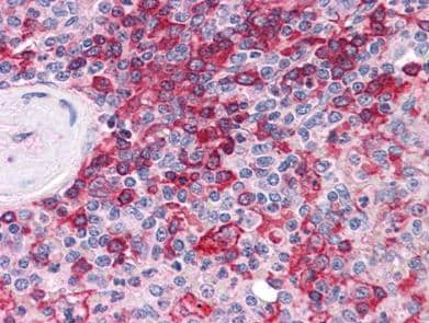 Immunohistochemistry (Formalin/PFA-fixed paraffin-embedded sections) - MPP5 antibody (ab113243)