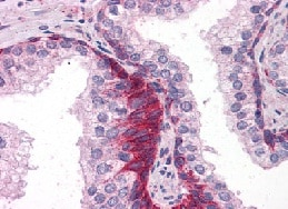 Immunohistochemistry (Formalin/PFA-fixed paraffin-embedded sections) - TRAF6 antibody (ab113244)