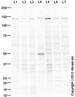 Western blot - Anti-ErbB 4 antibody (ab113246)