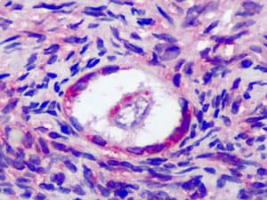 Immunohistochemistry (Formalin/PFA-fixed paraffin-embedded sections) - FSH Receptor antibody (ab113421)