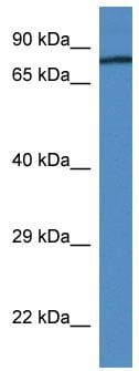 Western blot - Prothrombin antibody (ab113431)