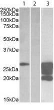 Western blot - GM2A antibody (ab113440)