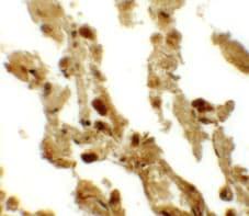 Immunohistochemistry - Anti-ESRP2 antibody (ab113486)