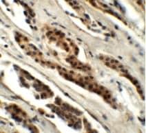 Immunohistochemistry - Anti-GLS2 antibody (ab113509)
