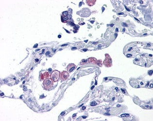 Immunohistochemistry (Formalin/PFA-fixed paraffin-embedded sections) - TLR7 antibody (ab113524)