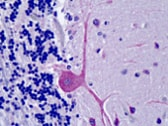 Immunohistochemistry (Formalin/PFA-fixed paraffin-embedded sections) - ORP1 antibody (ab113530)