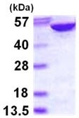 SDS-PAGE - Adenylosuccinate Lyase protein (ab113582)