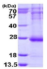 SDS-PAGE - ARL14 protein (His tag) (ab113588)