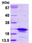 SDS-PAGE - GCIP interacting protein p29 (ab113599)