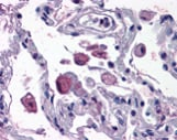 Immunohistochemistry (Formalin/PFA-fixed paraffin-embedded sections) - FLAP antibody (ab113614)