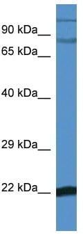Western blot - IKB zeta antibody (ab113629)