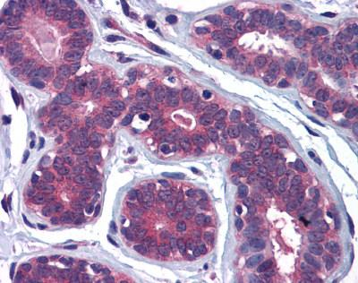 Immunohistochemistry (Formalin/PFA-fixed paraffin-embedded sections) - MYRIP antibody (ab113665)