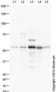 Western blot - Anti-TGF beta 2 antibody (ab113670)