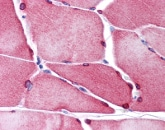 Immunohistochemistry (Formalin/PFA-fixed paraffin-embedded sections) - TMEM38A antibody (ab113676)