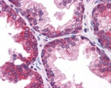 Immunohistochemistry (Formalin/PFA-fixed paraffin-embedded sections) - TMEM38B antibody (ab113681)