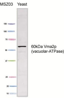 Western blot - VMA2 antibody [13D11B2] (ab113684)