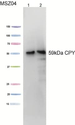 Western blot - Carboxypeptidase Y antibody [10A5B5] (ab113685)