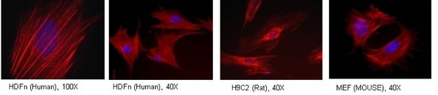 Immunocytochemistry/ Immunofluorescence - Tropomyosin 3 antibody [3D5AH3AB4] (ab113692)