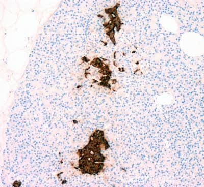 Immunohistochemistry (Formalin/PFA-fixed paraffin-embedded sections) - Anti-Pancreatic Polypeptide antibody (ab113694)