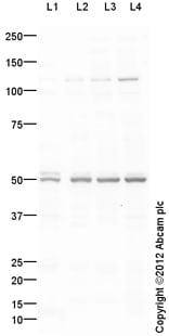 Western blot - Anti-KCNJ5  antibody (ab113699)