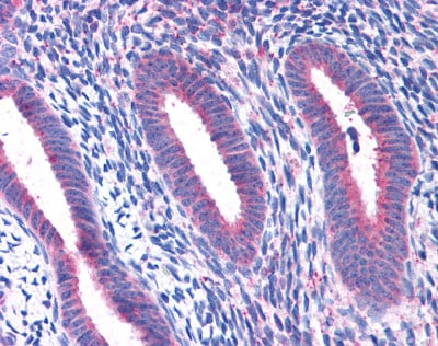 Immunohistochemistry (Formalin/PFA-fixed paraffin-embedded sections) - RPL22 antibody (ab113714)