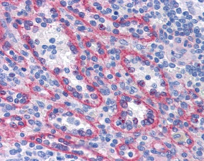 Immunohistochemistry (Formalin/PFA-fixed paraffin-embedded sections) - AFAP1L2 antibody (ab113718)