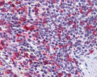 Immunohistochemistry (Formalin/PFA-fixed paraffin-embedded sections) - PCDH12 antibody (ab113720)