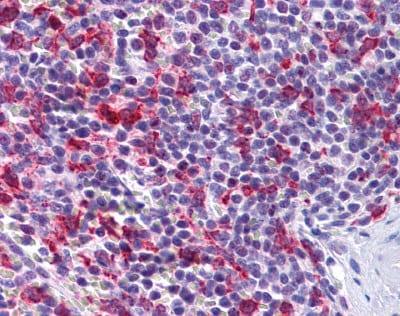 Immunohistochemistry (Formalin/PFA-fixed paraffin-embedded sections) - PCDH12 antibody (ab113720)