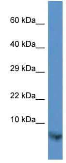 Western blot - TIMM13 antibody (ab113781)