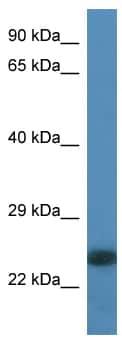 Western blot - LOC684533 antibody (ab113785)