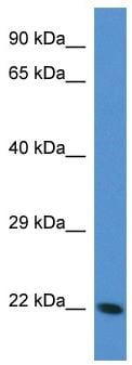 Western blot - TAGLN3 antibody (ab113792)