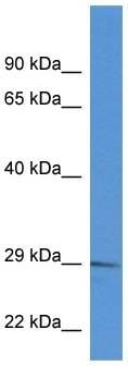Western blot - RAB2B antibody (ab113797)