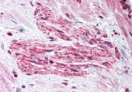 Immunohistochemistry (Formalin/PFA-fixed paraffin-embedded sections) - RUSC2 antibody (ab113801)