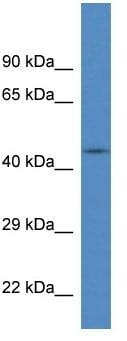 Western blot - FBXL20 antibody (ab113803)