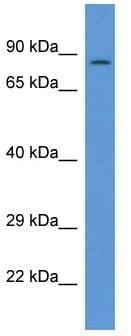 Western blot - PPP1R15B antibody (ab113809)