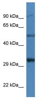 Western blot - delta Sarcoglycan antibody (ab113813)