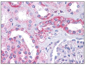 Immunohistochemistry (Formalin/PFA-fixed paraffin-embedded sections) - SIPA1L1 antibody (ab113815)