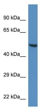 Western blot - TRIM11 antibody (ab113829)