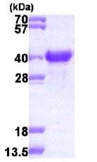 SDS-PAGE - NACA1 protein (His tag) (ab113865)